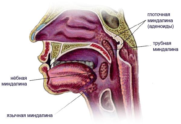 Миндалины в носоглотке