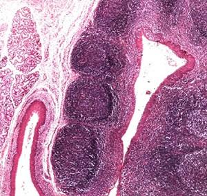 Крипты миндалин